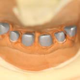 wklad-korzeniowo-koronowy-metal-4