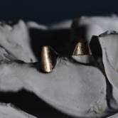 wklad-korzeniowo-koronowy-zlotol-12