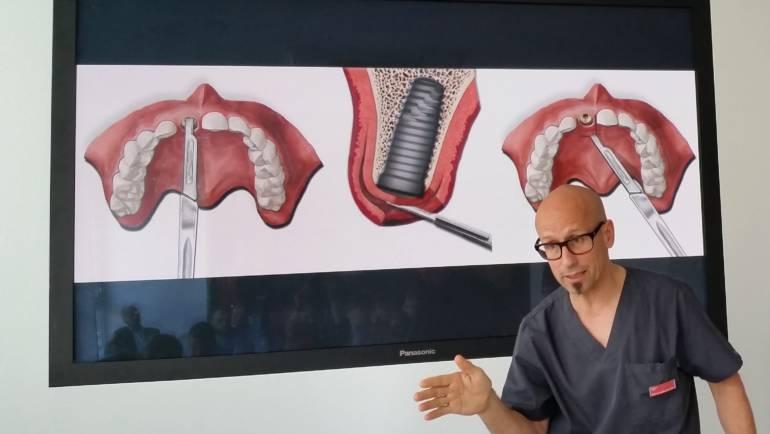 Zaawansowany kurs z zakresu technik chirurgicznych oraz implantologii estetycznej